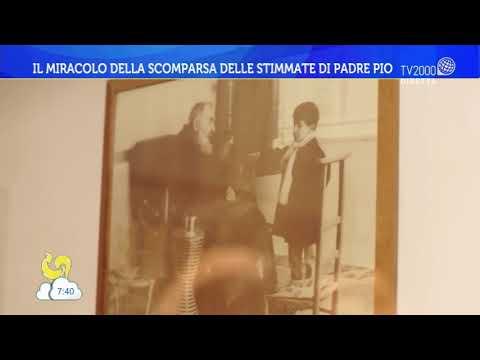 Il miracolo della scomparsa delle stimmate di Padre Pio